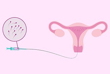endomitria-spermategxysi