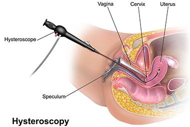 ysteroskopisi